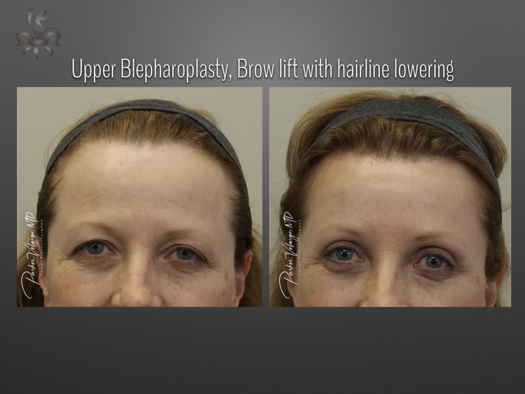 upper blepharoplasty brow lift and hairline lowering before & after