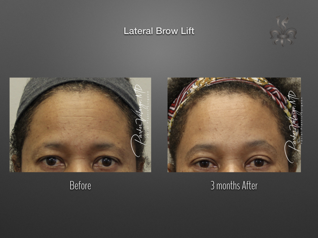 lateral brow lift before & after