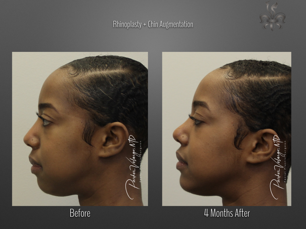rhinoplasty & chin augmentation before & after