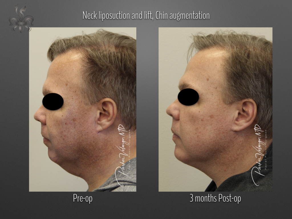 Neck liposuction lift & chin augmentation before & after