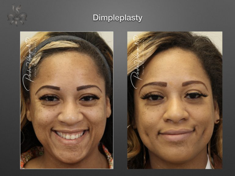dimpleplasty before and after