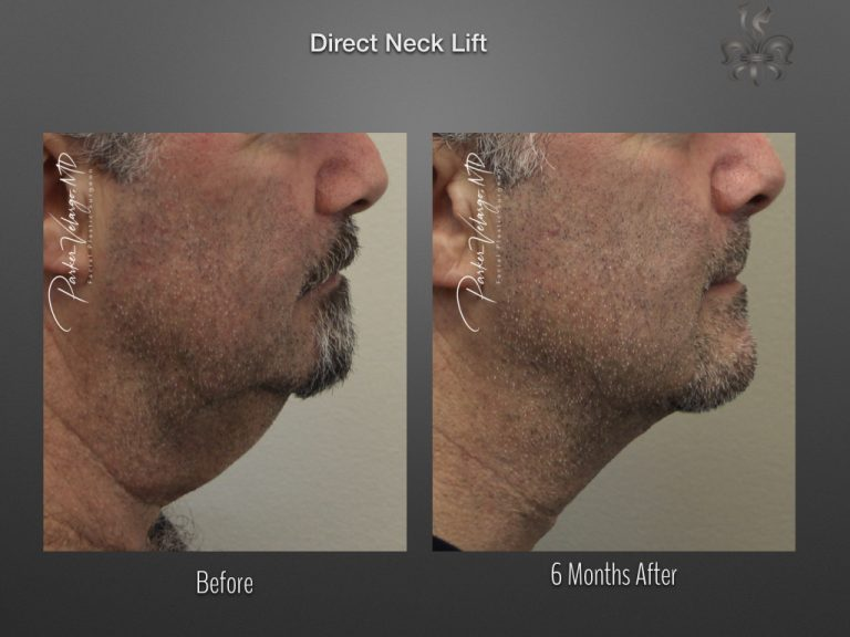 direct neck lift before & after