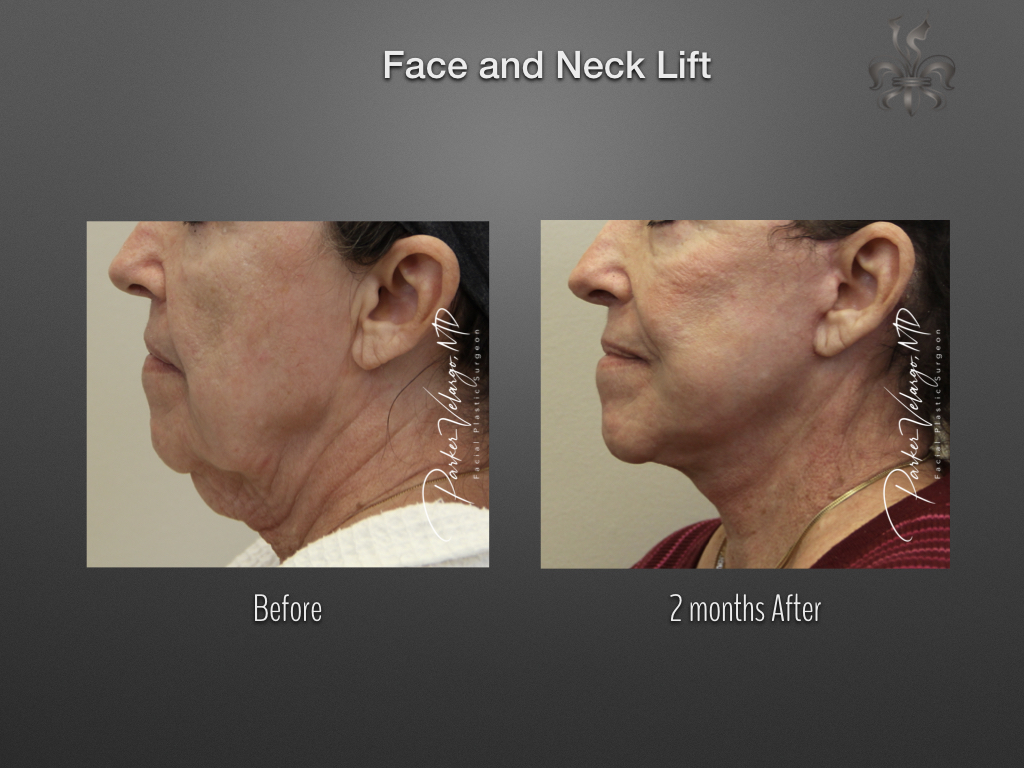 face/neck lift before & after