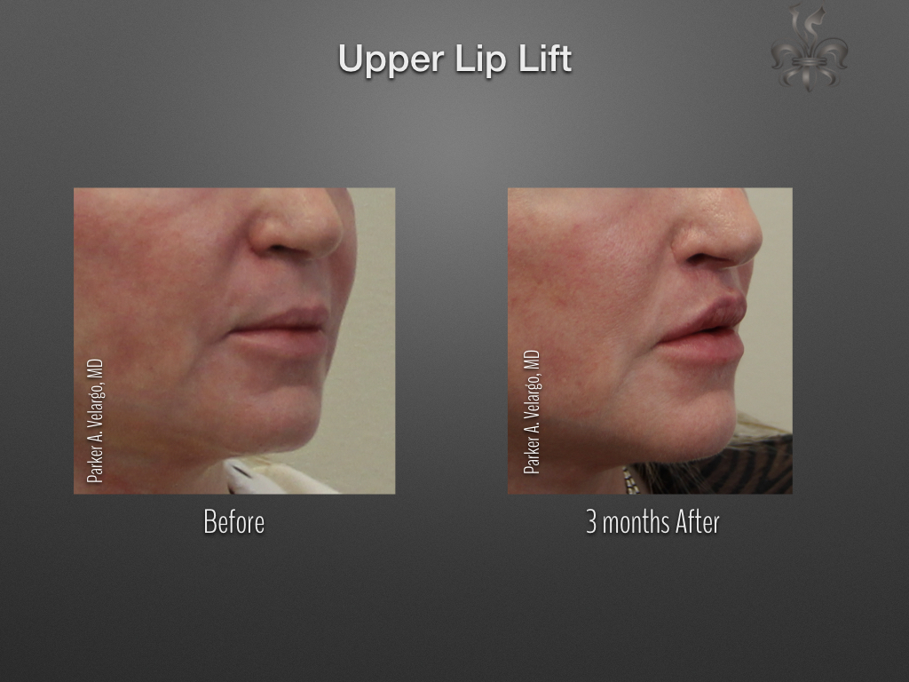 upper lip lift before & after