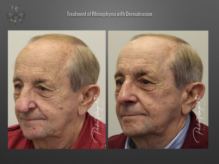 rhinophyma dermabrasion before and after