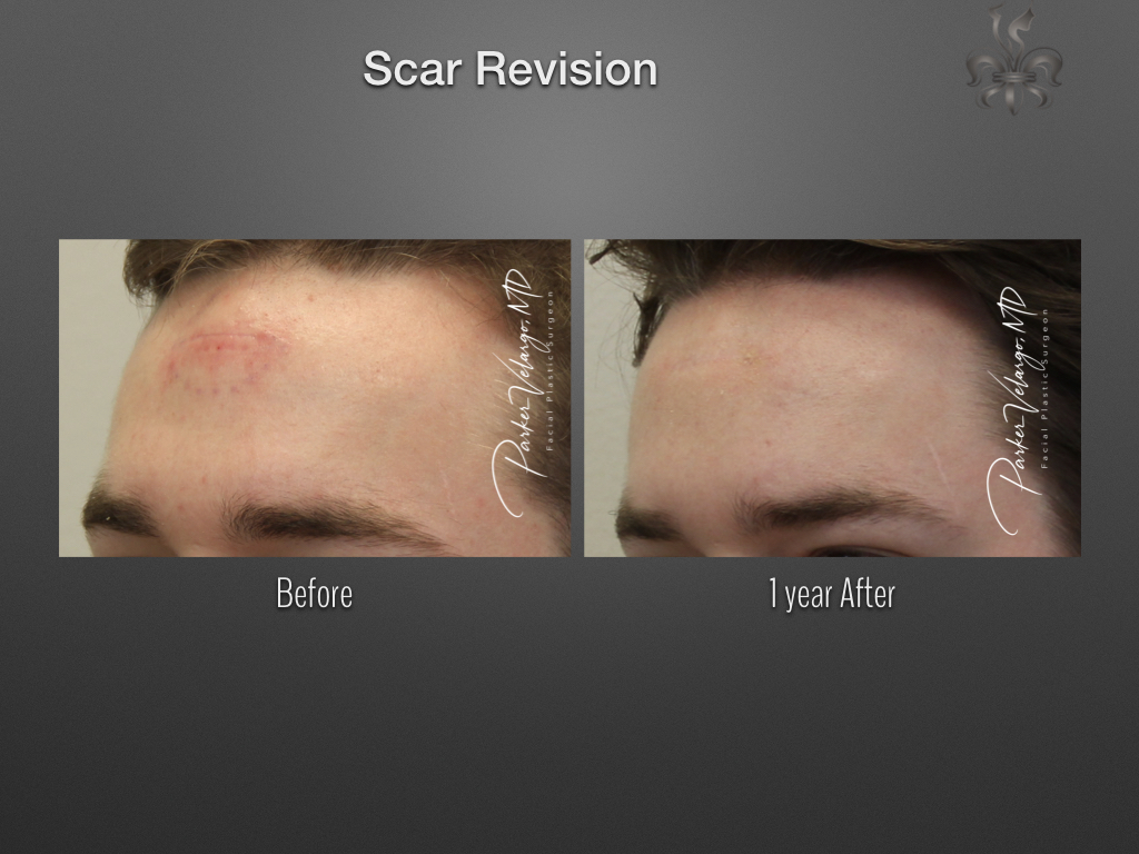 scar revision before & after