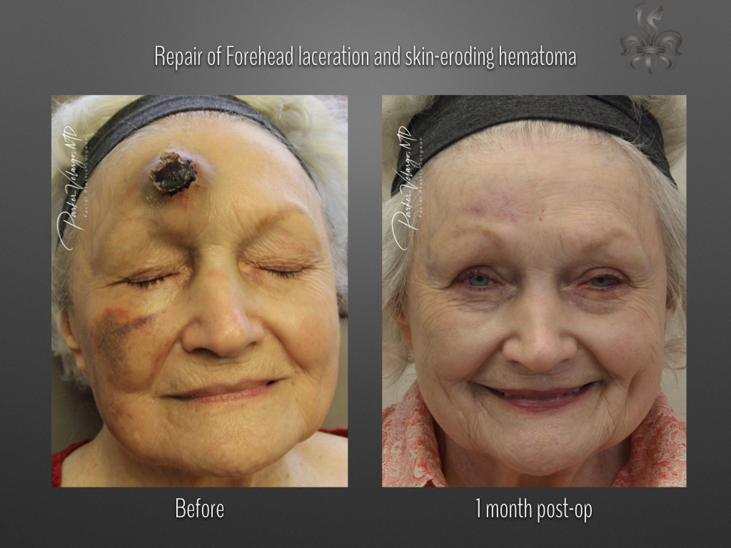 Forehead laceration and hematoma treatment before & after