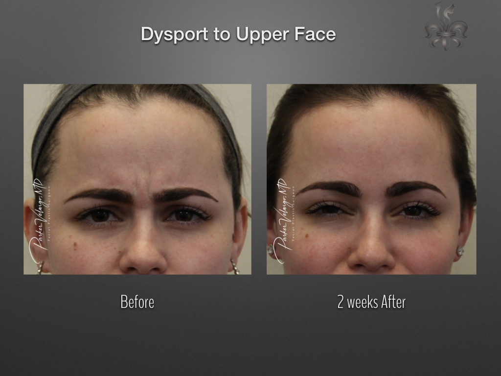 Botox/Dysport/Xeomin Before and After