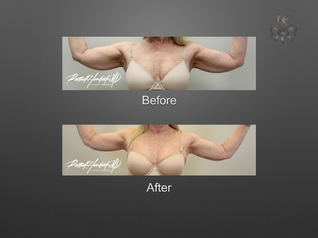 Brachioplasty (arm lift) before and after
