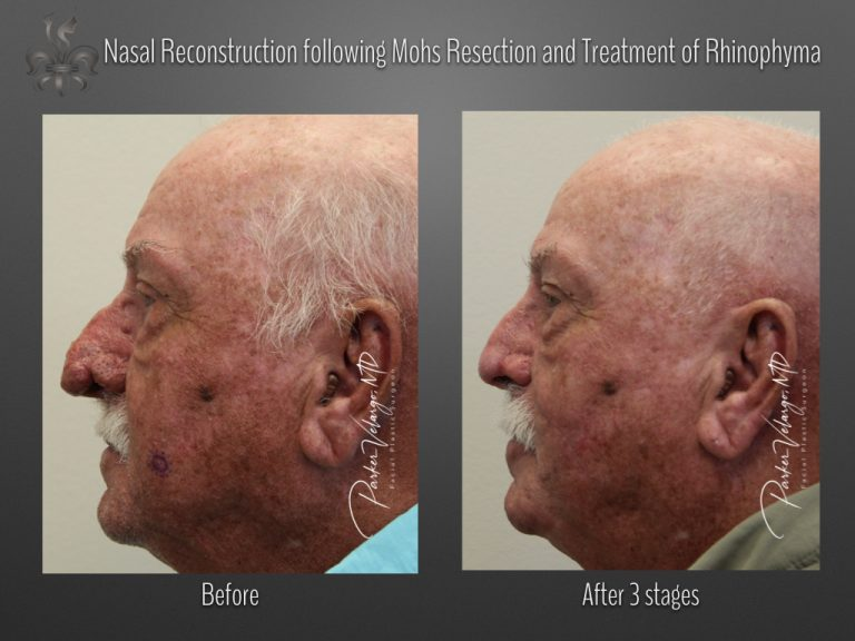 rhinophyma before & after