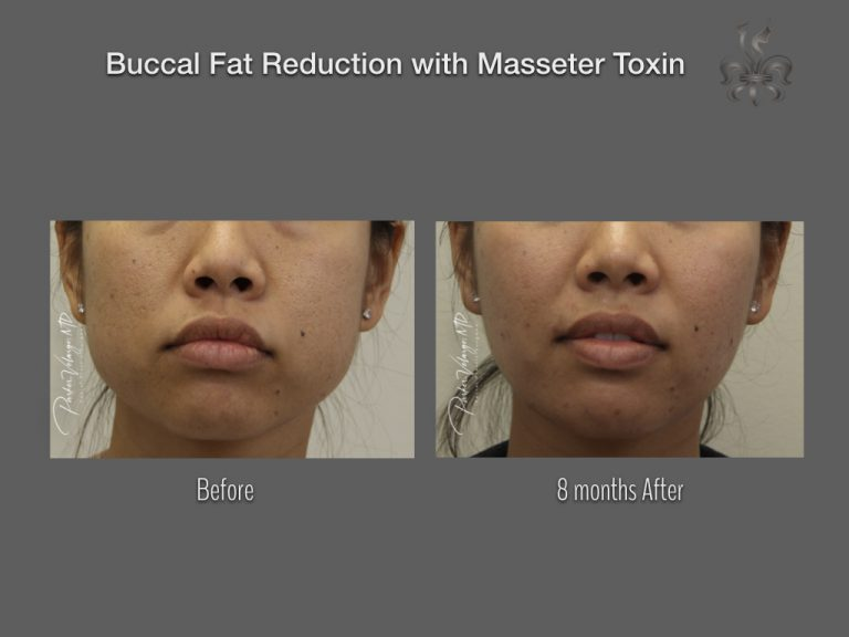 Buccal Fat Reduction with Masseter Toxin Before & After