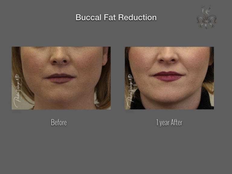 Buccal Fat Reduction Before & After