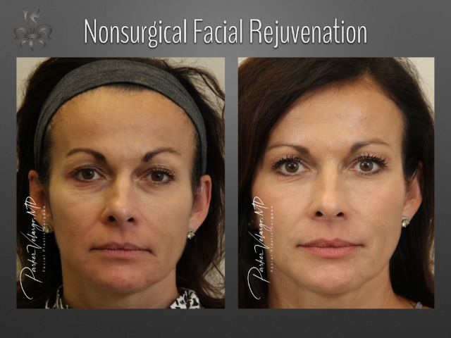 Non-Surgical Facial Rejuvenation Before & After