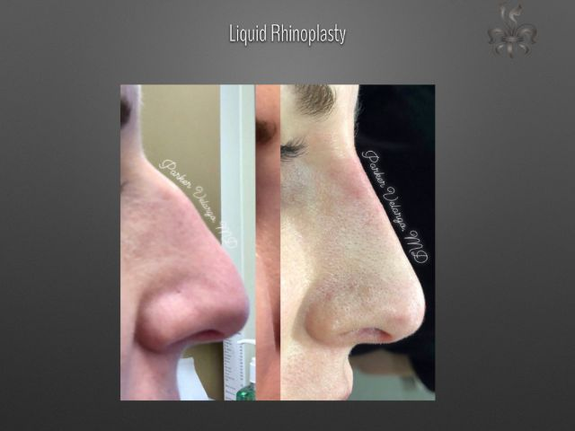 Non-Surgical Rhinoplasty Before & After